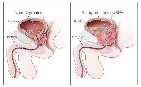 ProstateCancer_2