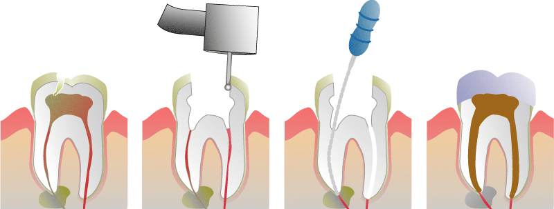 RootCAnal_1